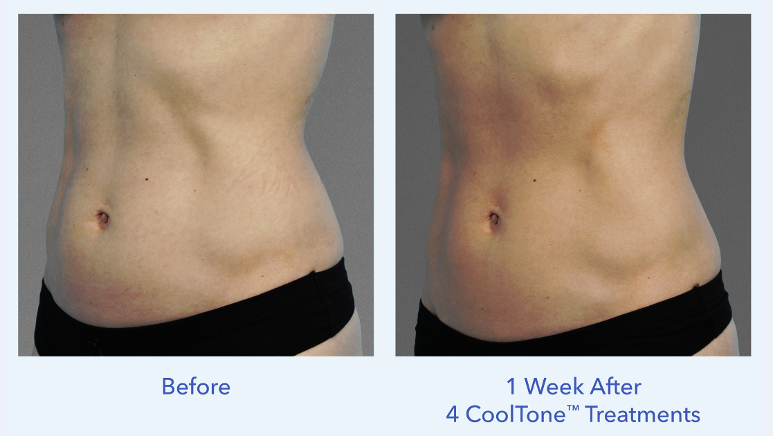 Dr. Bonness administers safe CoolTone treatments to women who want flatter stomachs fast
