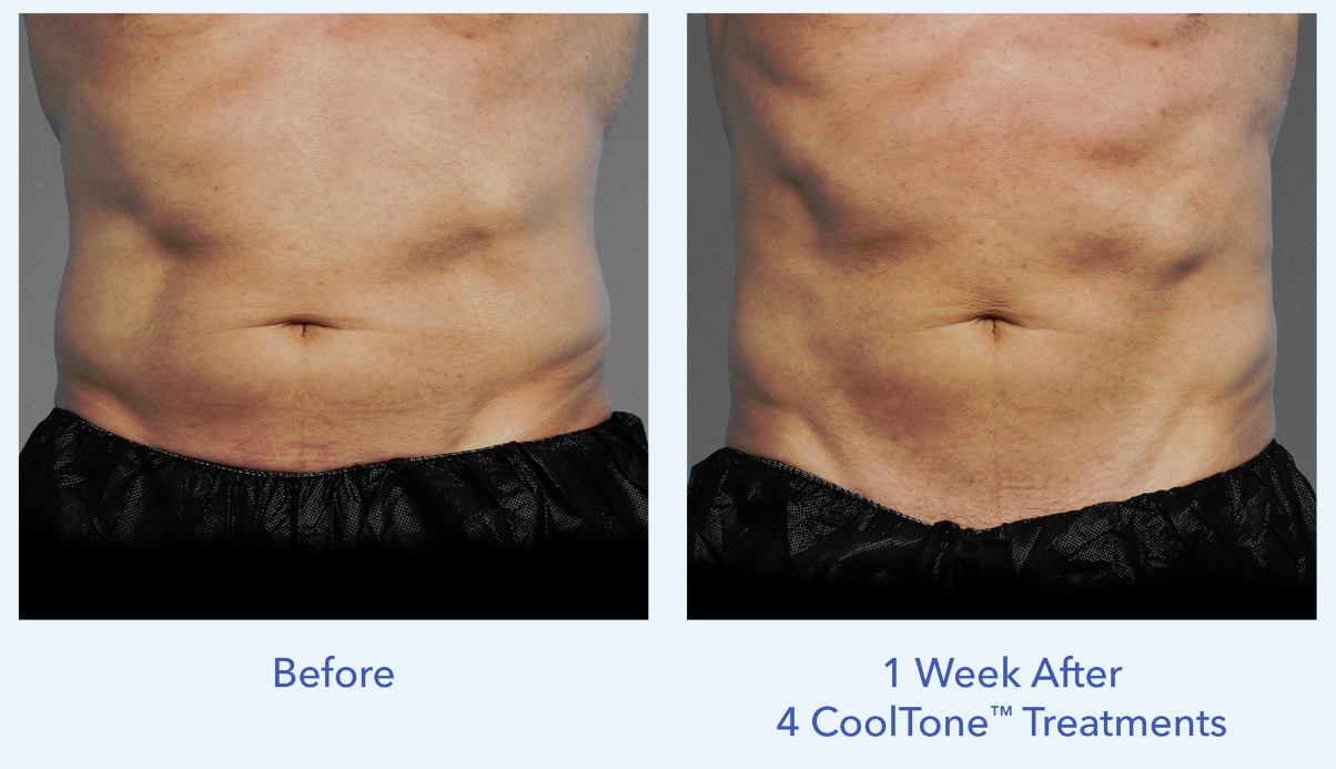 CoolTone is for men who want flatter stomachs and more defined abs